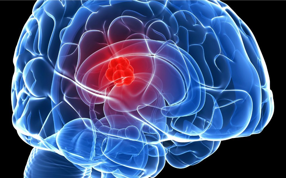 Scientists are discovering a way to prevent the spread of brain cancer