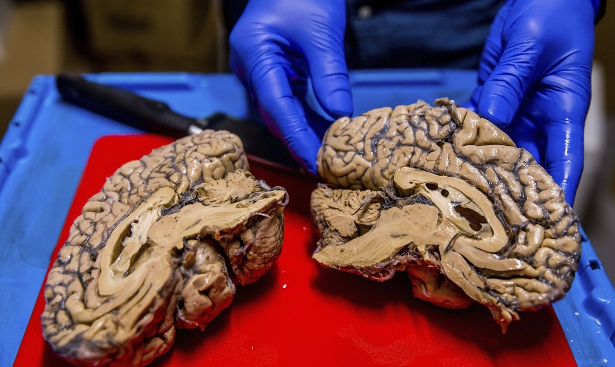 Basic copper and iron found in the brains of two Alzheimer's patients