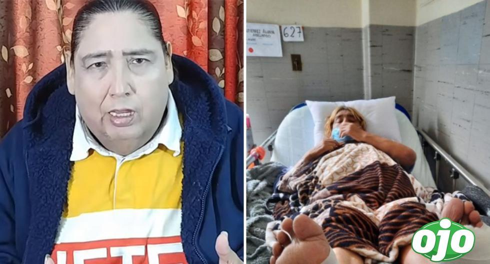 Tongo deplores that the soles of his feet were burnt at Webb Ain Farandula Hospital |  eye width