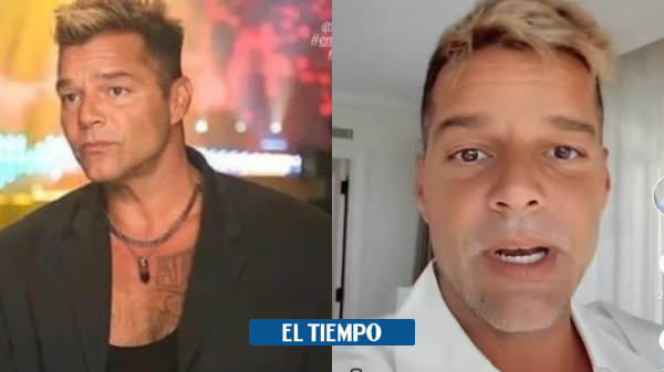 Ricky Martin reappears on the networks and explains what happened to his face – People – Culture